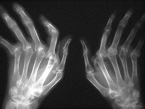 ¿Qué es bueno para la artritis?